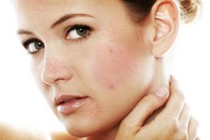 p-adult-acne-l.jpg